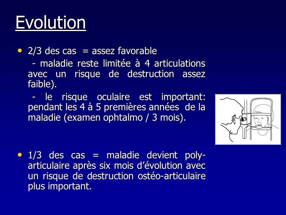 Evolution 2/3 des cas = assez favorable 2/3 des cas = assez favorable - maladie reste limitée à 4 articulations avec un risque de destruction assez fa