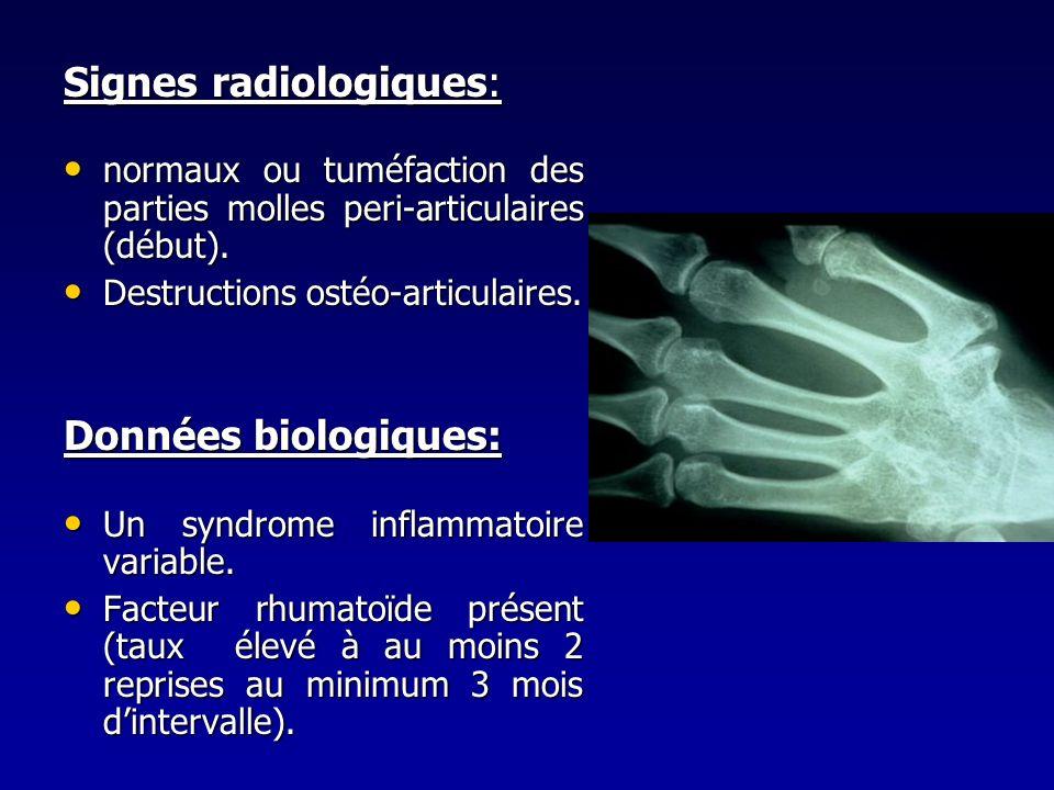 Signes radiologiques: normaux ou tuméfaction des parties molles peri-articulaires (début). normaux ou tuméfaction des parties molles peri-articulaires