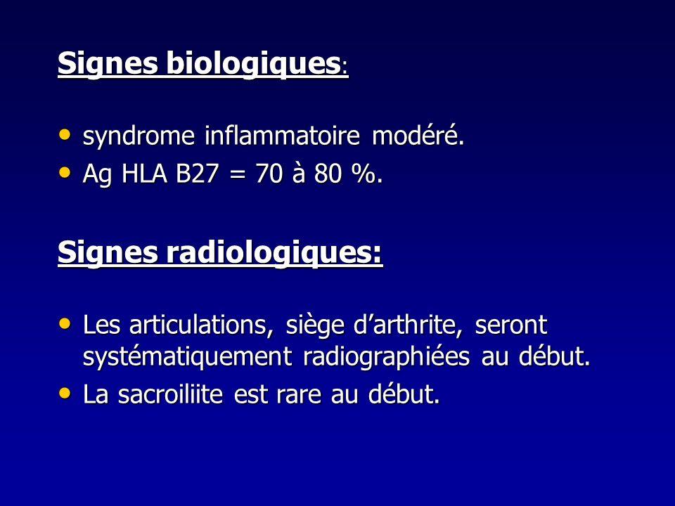 Signes biologiques : syndrome inflammatoire modéré. syndrome inflammatoire modéré. Ag HLA B27 = 70 à 80 %. Ag HLA B27 = 70 à 80 %. Signes radiologique