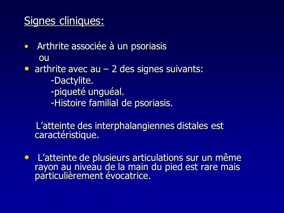 Signes cliniques: Arthrite associée à un psoriasis Arthrite associée à un psoriasis ou ou arthrite avec au – 2 des signes suivants: arthrite avec au –