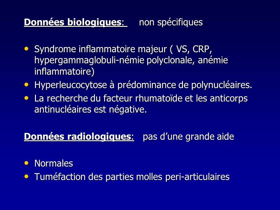 Données biologiques: non spécifiques Syndrome inflammatoire majeur ( VS, CRP, hypergammaglobuli-némie polyclonale, anémie inflammatoire) Syndrome infl