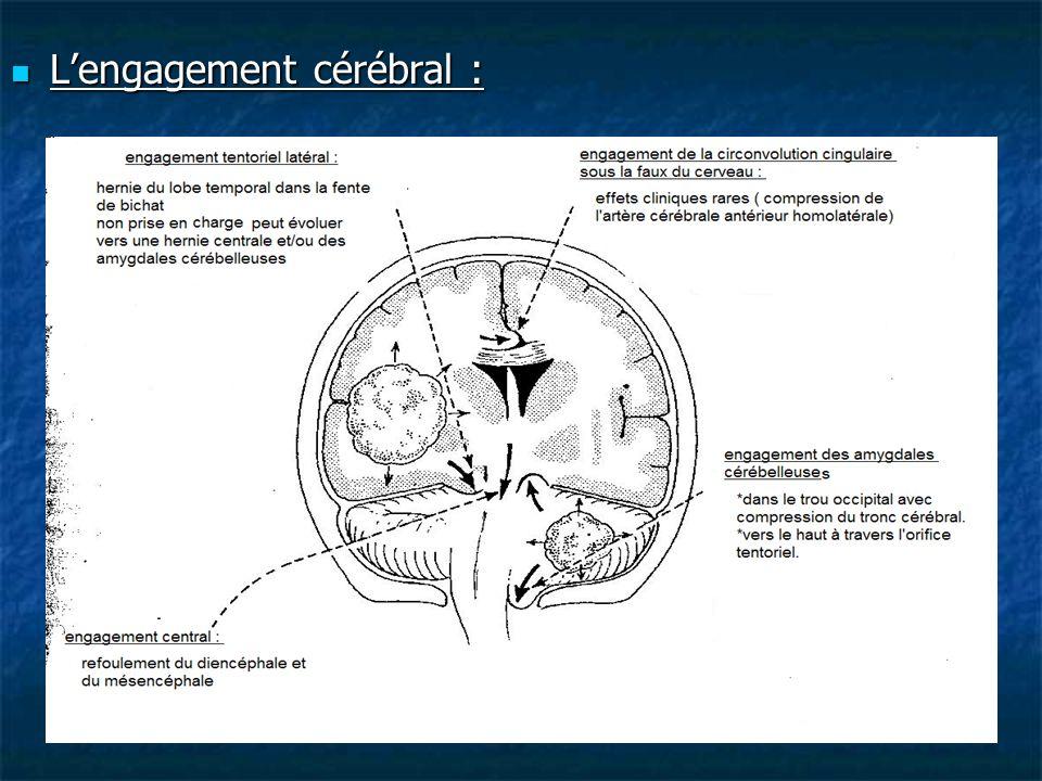 Lengagement cérébral : Lengagement cérébral :