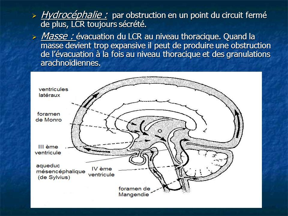 Hydrocéphalie : par obstruction en un point du circuit fermé de plus, LCR toujours sécrété. Hydrocéphalie : par obstruction en un point du circuit fer