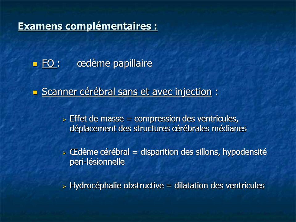 Examens complémentaires : FO :œdème papillaire FO :œdème papillaire Scanner cérébral sans et avec injection : Scanner cérébral sans et avec injection