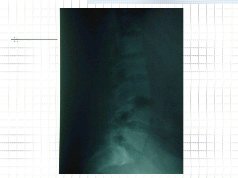 Scintigraphie osseuse : hyperfixation des fissures Ostéodensitométrie : masse osseuse très basse avec T score < - 2,5