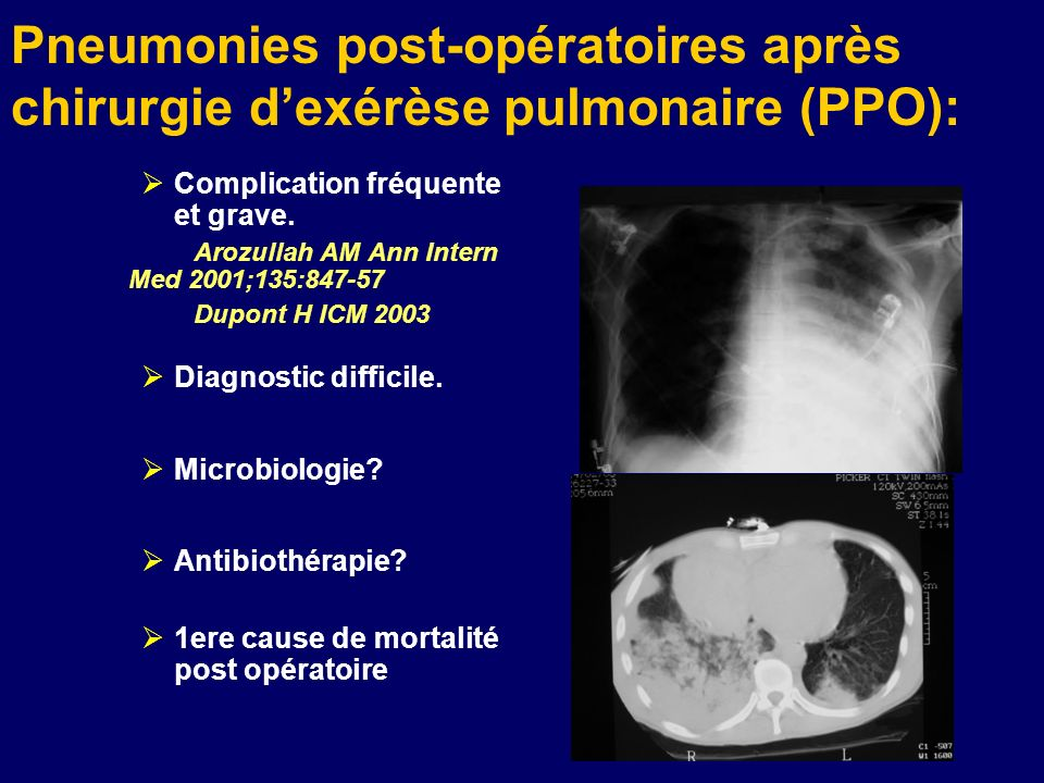 Pneumonies post-opératoires après chirurgie dexérèse pulmonaire (PPO): Complication fréquente et grave. Arozullah AM Ann Intern Med 2001;135:847-57 Du