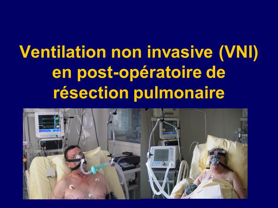 Ventilation non invasive (VNI) en post-opératoire de résection pulmonaire