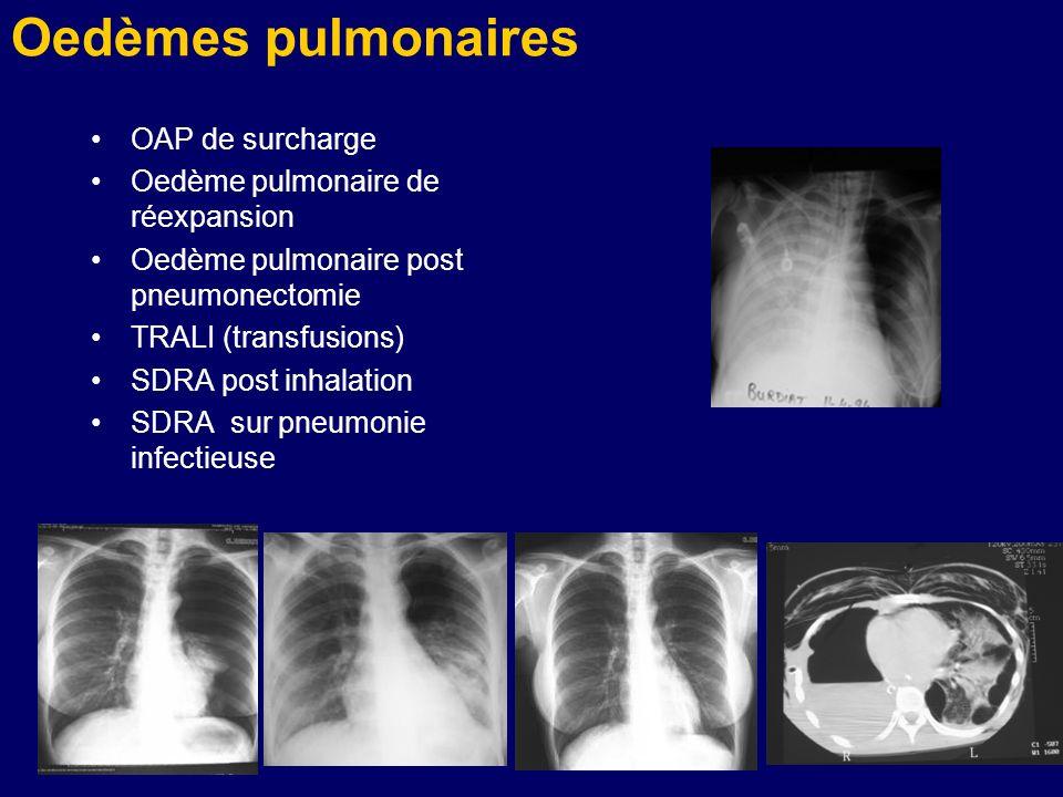 Oedèmes pulmonaires OAP de surcharge Oedème pulmonaire de réexpansion Oedème pulmonaire post pneumonectomie TRALI (transfusions) SDRA post inhalation