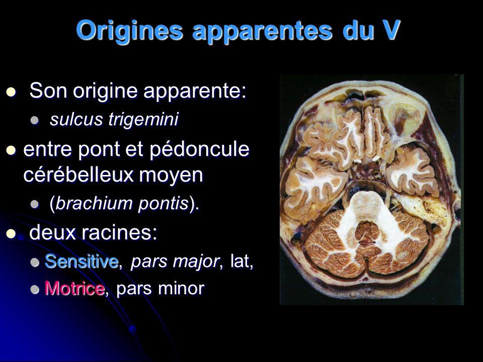 Trajet du V Deux portions: Deux portions: Rétrogassérienne: entre pons et la loge trigéminale (cisternale) Rétrogassérienne: entre pons et la loge trigéminale (cisternale) Gassérienne: cavum de Meckel (loge trigéminale) se continue avec la loge caverneuse.