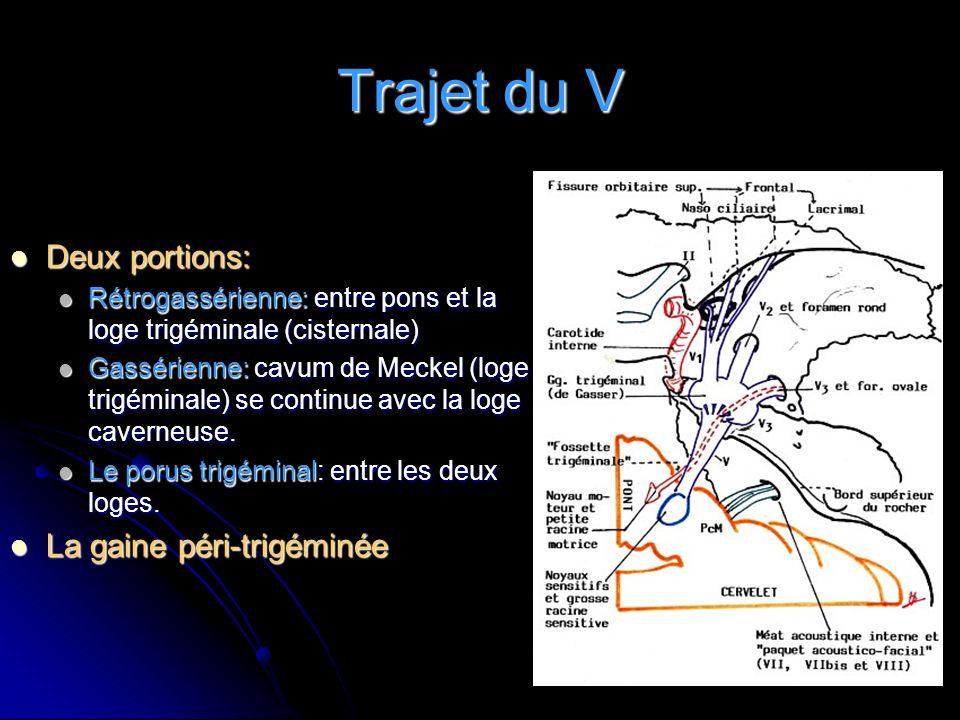 Rapports des racines du V La gaine péri-trigéminée La gaine péri-trigéminée En avant: En avant: face postérieure du rocher face postérieure du rocher En arriére et en haut: En arriére et en haut: pont, ACM et ACS pont, ACM et ACS En dedans: En dedans: sinus pétreux inférieur sinus pétreux inférieur tronc basilaire et rameaux tronc basilaire et rameaux artére radiculaire du V artére radiculaire du V En dehors En dehors paquet acoustico-facial.