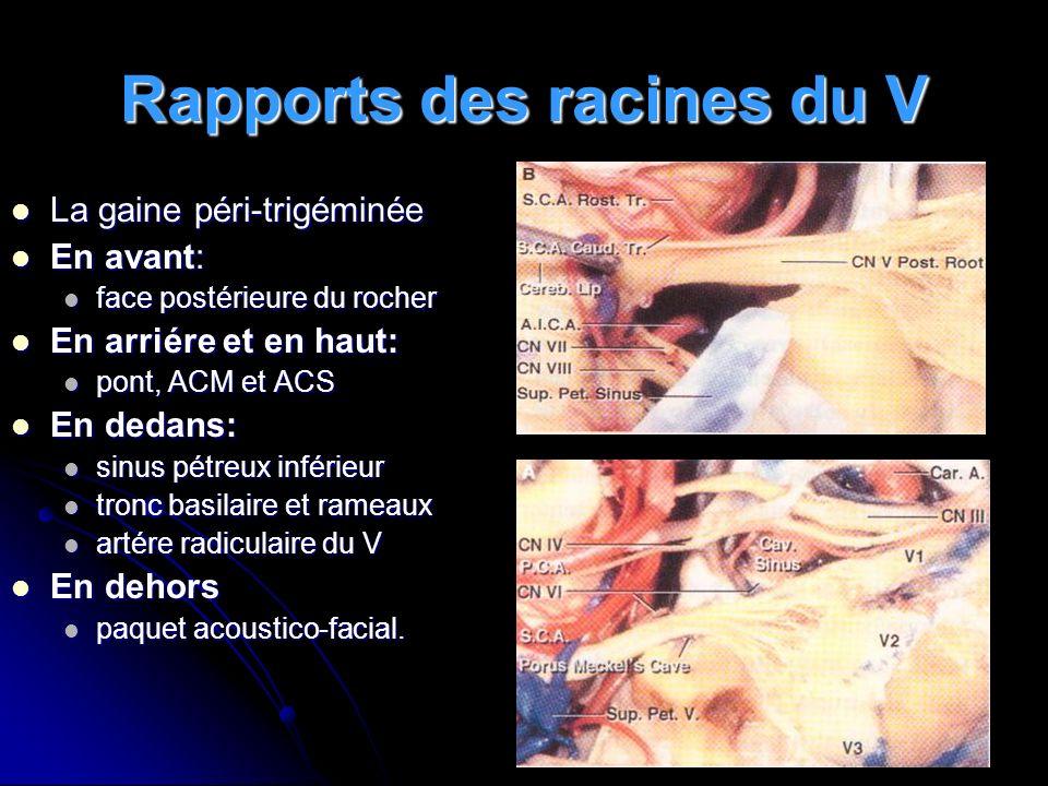 Causes de la compression Janneta Janneta (1204 cas) (1204 cas) Conflit vasculaire Artère 75 % Artère 75 % Veine 13 % Veine 13 % Conflit non vasculaire Arachnoïdite Arachnoïdite Osseux Osseux