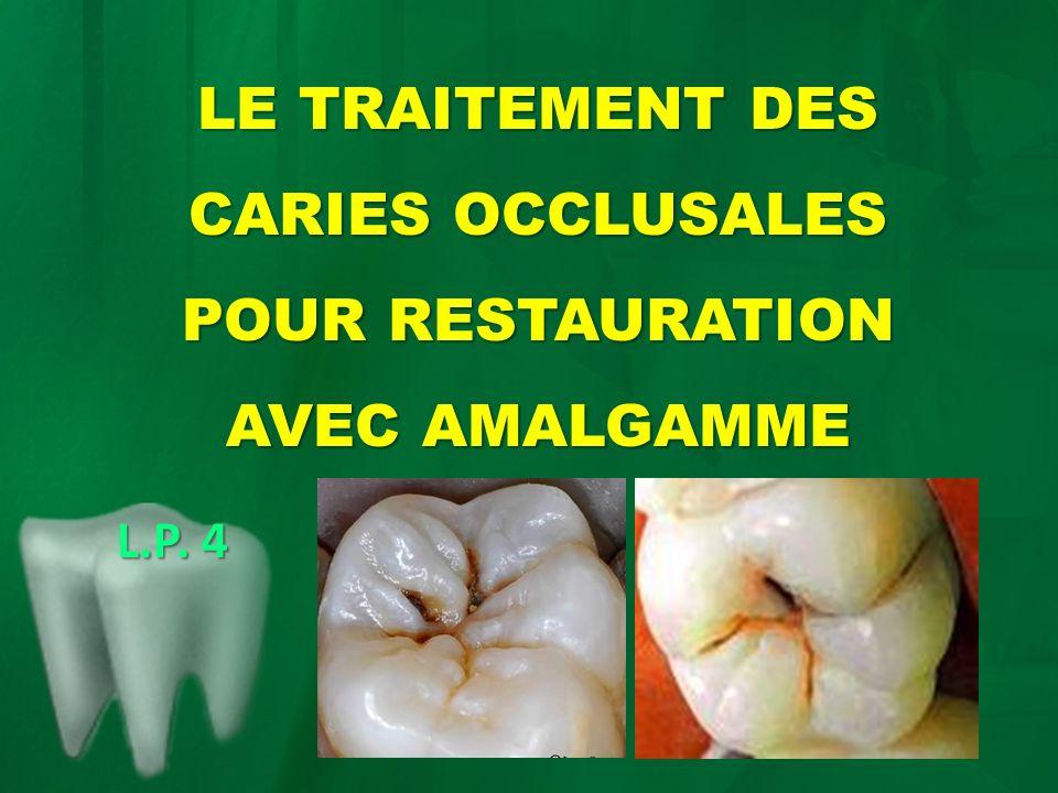La préparation de la cavité suit les mêmes étapes que dans la première situation clinique, à lexception du fait que les marges ne sont pas biseautés et la cavité a une forme circulaire avec la paroi parapulpaire parallèle à la surface extérieure de la dent.