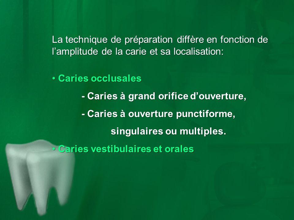 La technique de préparation diffère en fonction de lamplitude de la carie et sa localisation: Caries occlusales Caries occlusales - Caries à grand ori