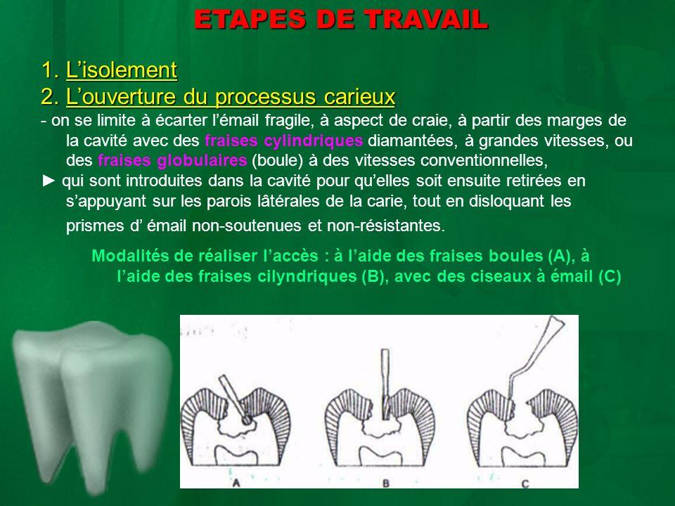 ETAPES DE TRAVAIL ETAPES DE TRAVAIL 1.Lisolement 2.Louverture du processus carieux - on se limite à écarter lémail fragile, à aspect de craie, à parti