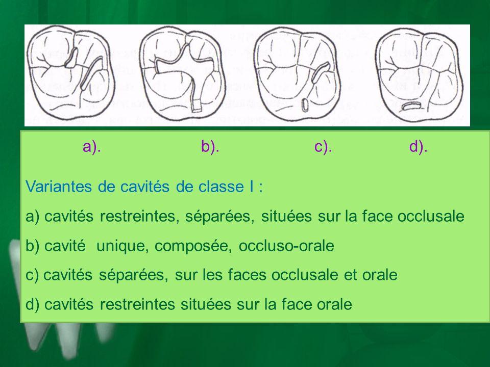a). b). c). d). Variantes de cavités de classe I : a) cavités restreintes, séparées, situées sur la face occlusale b) cavité unique, composée, occluso