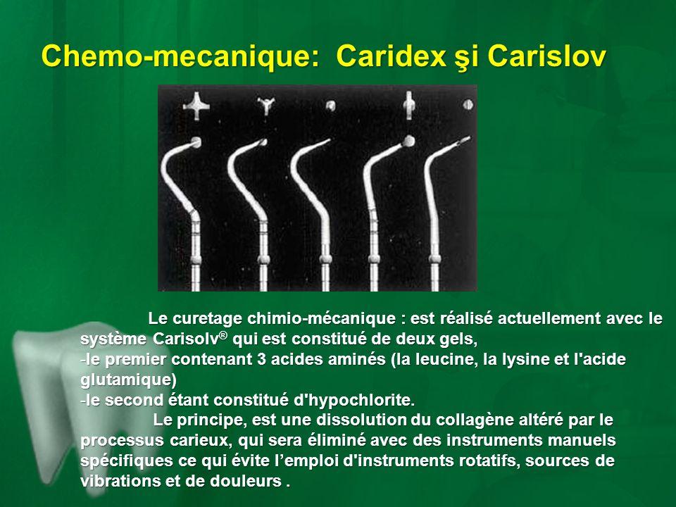Chemo-mecanique: Caridex şi Carislov Le curetage chimio-mécanique : est réalisé actuellement avec le système Carisolv ® qui est constitué de deux gels