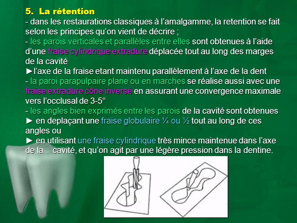 5. La rétention - dans les restaurations classiques à lamalgamme, la retention se fait selon les principes quon vient de décrire ; - les parois vertic