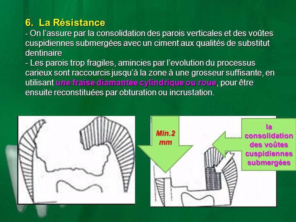 6. La Résistance - On lassure par la consolidation des parois verticales et des voûtes cuspidiennes submergées avec un ciment aux qualités de substitu