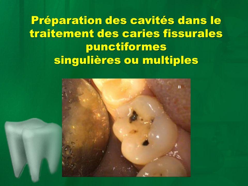 Préparation des cavités dans le traitement des caries fissurales punctiformes singulières ou multiples