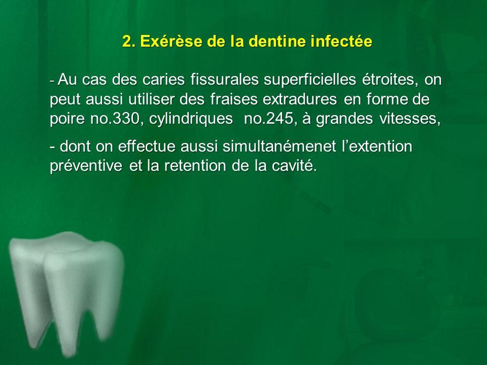 2. Exérèse de la dentine infectée - Au cas des caries fissurales superficielles étroites, on peut aussi utiliser des fraises extradures en forme de po