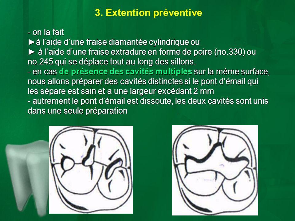 3. Extention préventive - on la fait à laide dune fraise diamantée cylindrique ouà laide dune fraise diamantée cylindrique ou à laide dune fraise extr