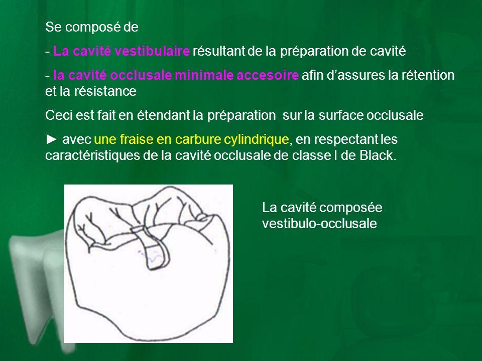 Se composé de - La cavité vestibulaire résultant de la préparation de cavité - la cavité occlusale minimale accesoire afin dassures la rétention et la