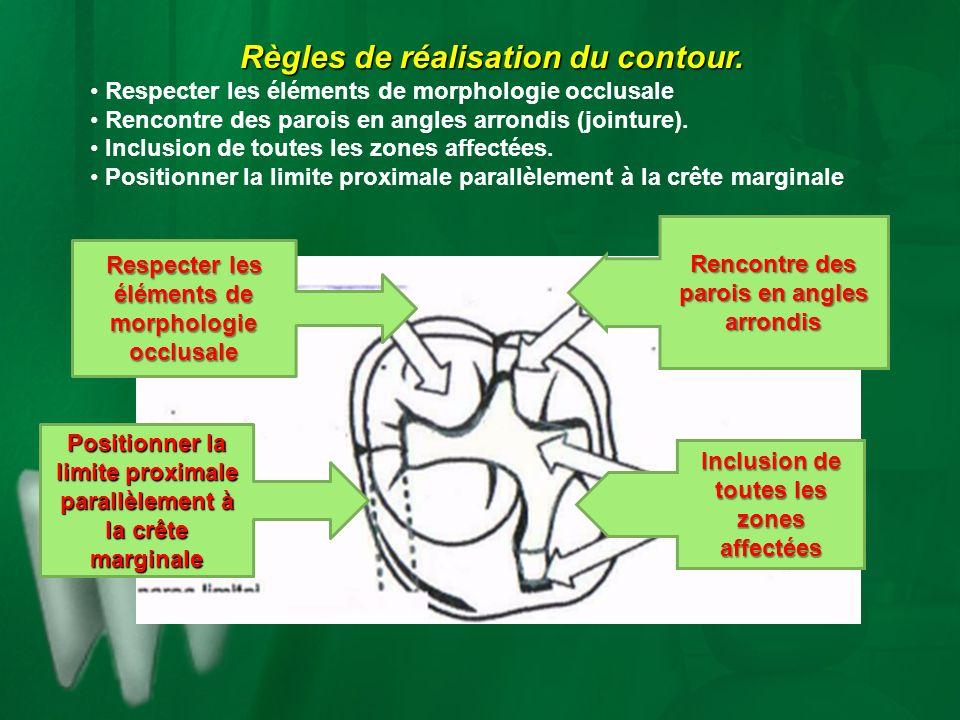 Règles de réalisation du contour. Respecter les éléments de morphologie occlusale Rencontre des parois en angles arrondis (jointure). Inclusion de tou