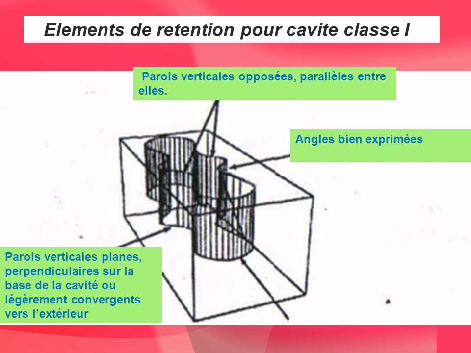 Vu des considérations dassurance de la retention et de la résistance, on réalise : - des parois verticales planes, perpendiculaires sur la base de la cavité ou légèrement convergents vers lextérieur, -une base plane ou en marches - des parois verticales opposées, parallèles entre elles.