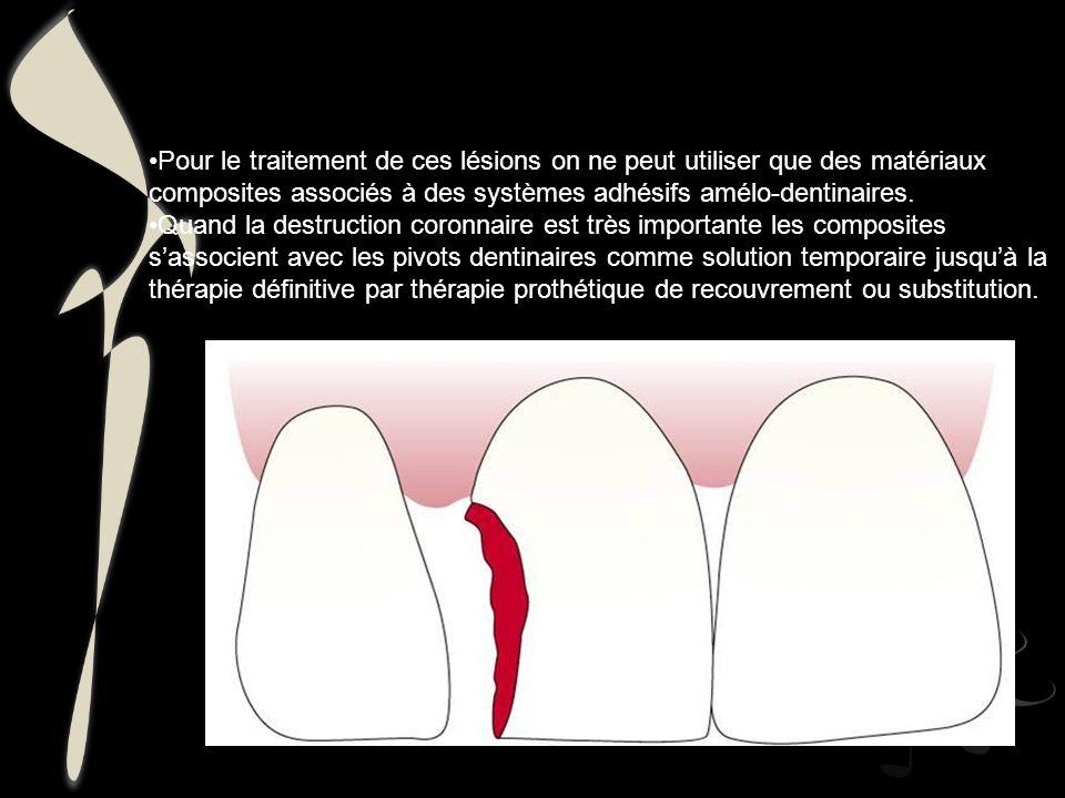 Pour le traitement de ces lésions on ne peut utiliser que des matériaux composites associés à des systèmes adhésifs amélo-dentinaires. Quand la destru