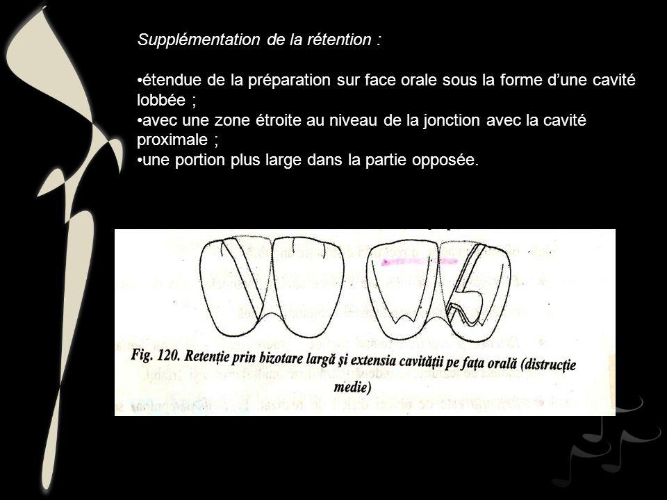 Supplémentation de la rétention : étendue de la préparation sur face orale sous la forme dune cavité lobbée ; avec une zone étroite au niveau de la jo