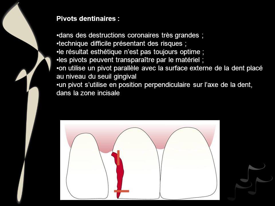 Pivots dentinaires : dans des destructions coronaires très grandes ; technique difficile présentant des risques ; le résultat esthétique nest pas touj