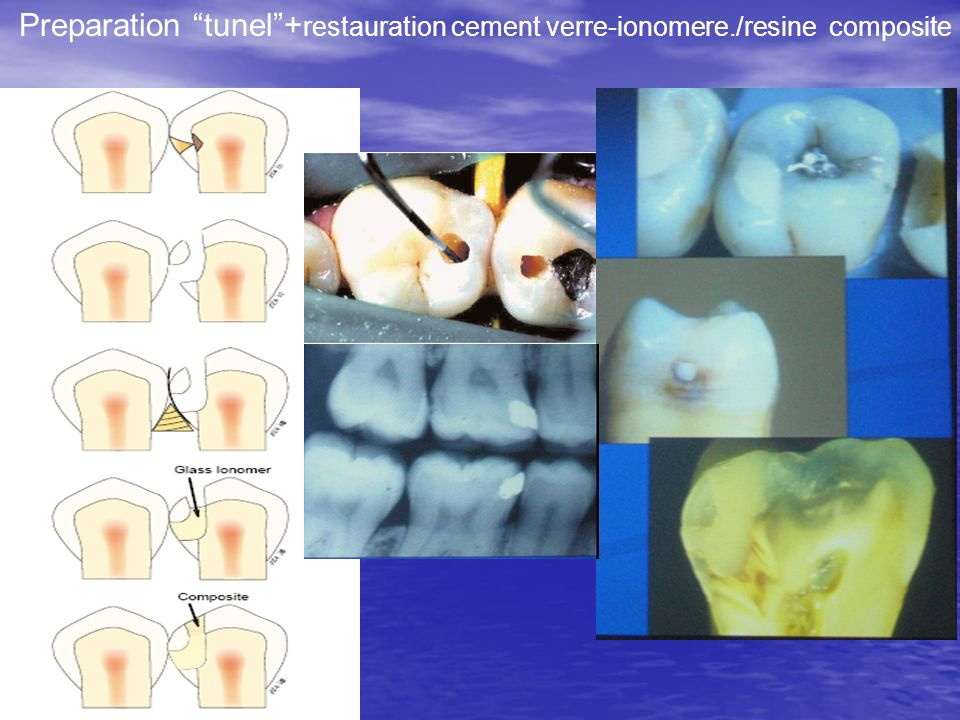 Preparation tunel+ restauration cement verre-ionomere./resine composite