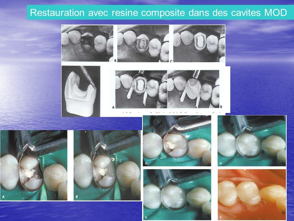 Restauration avec resine composite dans des cavites MOD