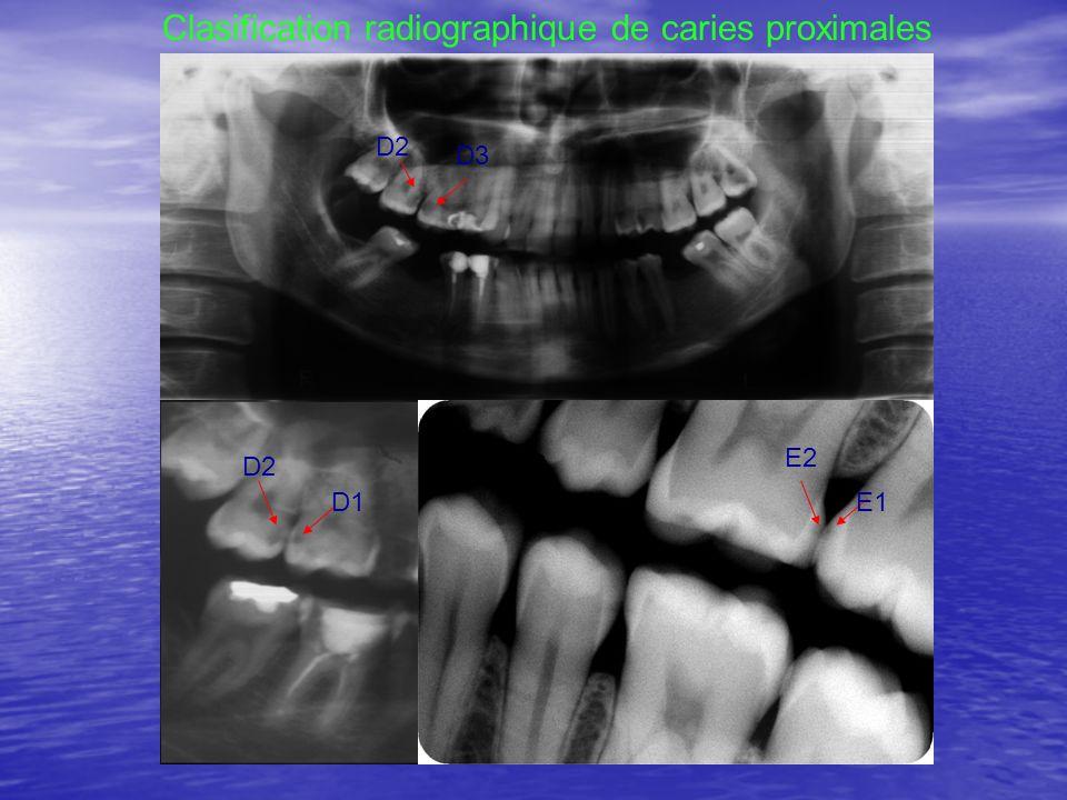 D3 D2 Clasification radiographique de caries proximales D1 D2 E2 E1