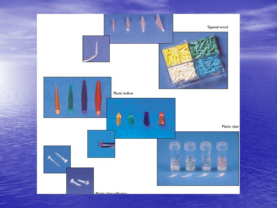 Methodes dinsertion de resine composite dans les cavites proximo-oclusales Tehnica stratificata Tehnica oblica (fotopolimerizare tridirectionala)