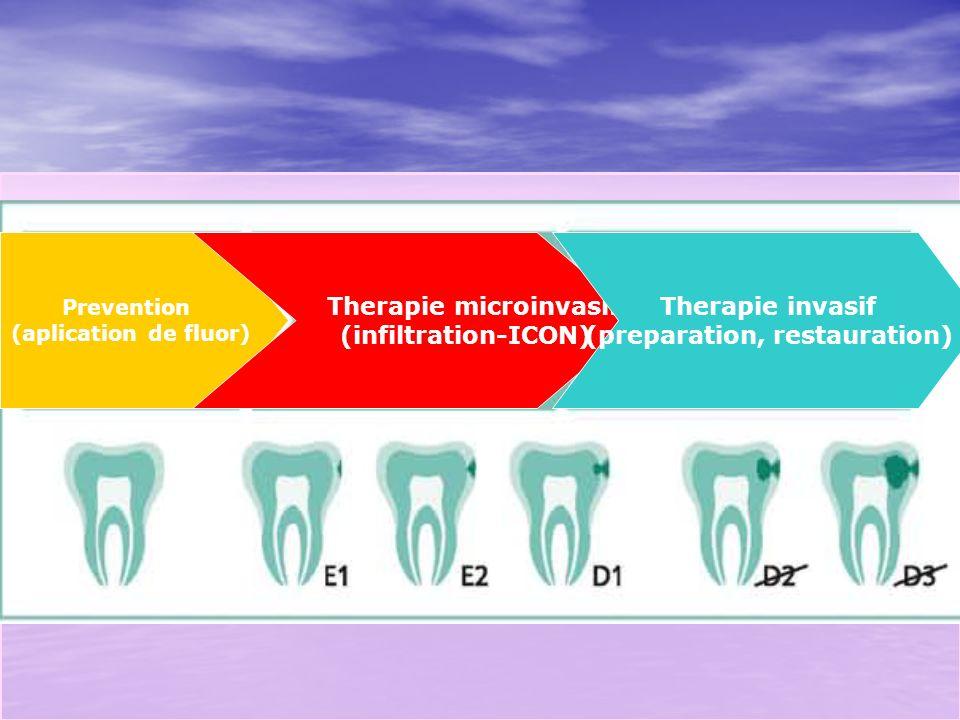 TERAPIA CARIILOR PROXIMALE CU Sediul 2-1- (leziune carioasă proximala/grup posterior cu implicare dentinară minimă)