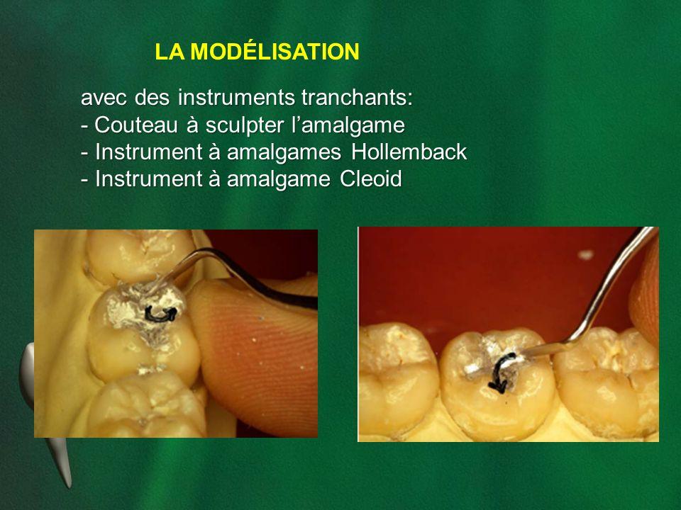 LA MODÉLISATION avec des instruments tranchants: - Couteau à sculpter lamalgame - Instrument à amalgames Hollemback - Instrument à amalgame Cleoid