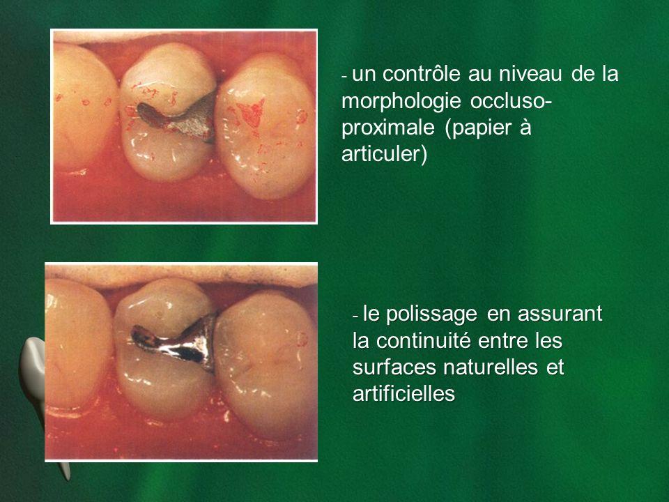 - un contrôle au niveau de la morphologie occluso- proximale (papier à articuler) - le polissage en assurant la continuité entre les surfaces naturell