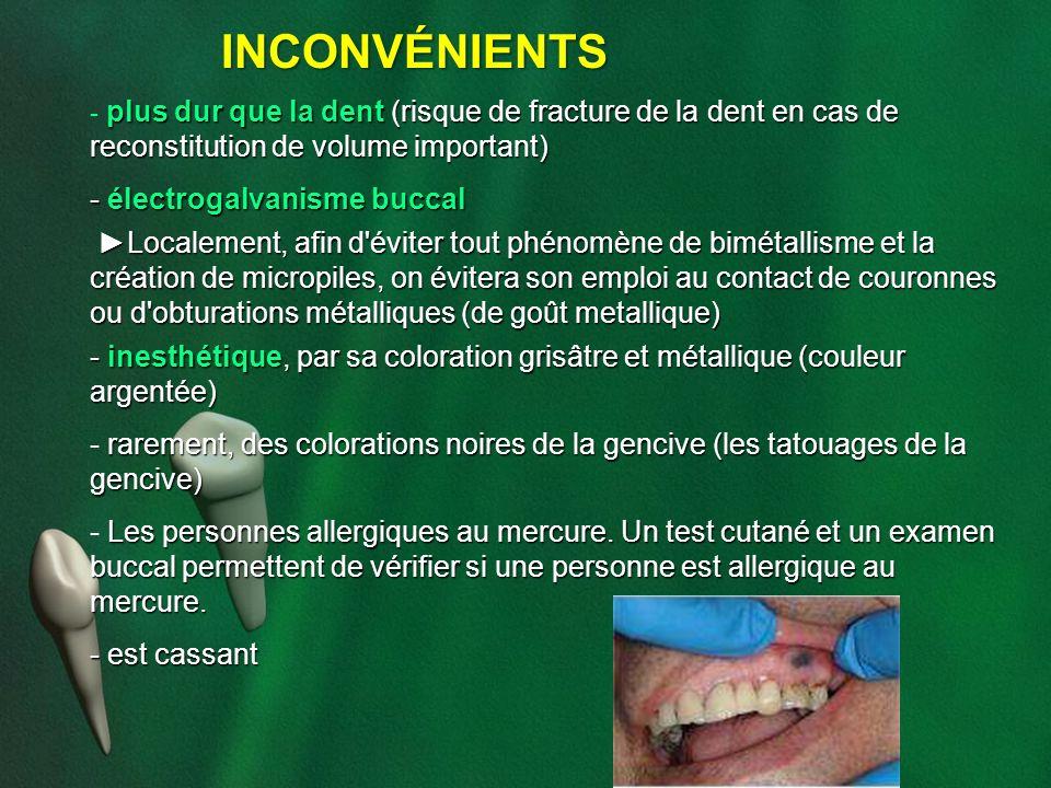 INCONVÉNIENTS plus dur que la dent (risque de fracture de la dent en cas de reconstitution de volume important) - plus dur que la dent (risque de frac