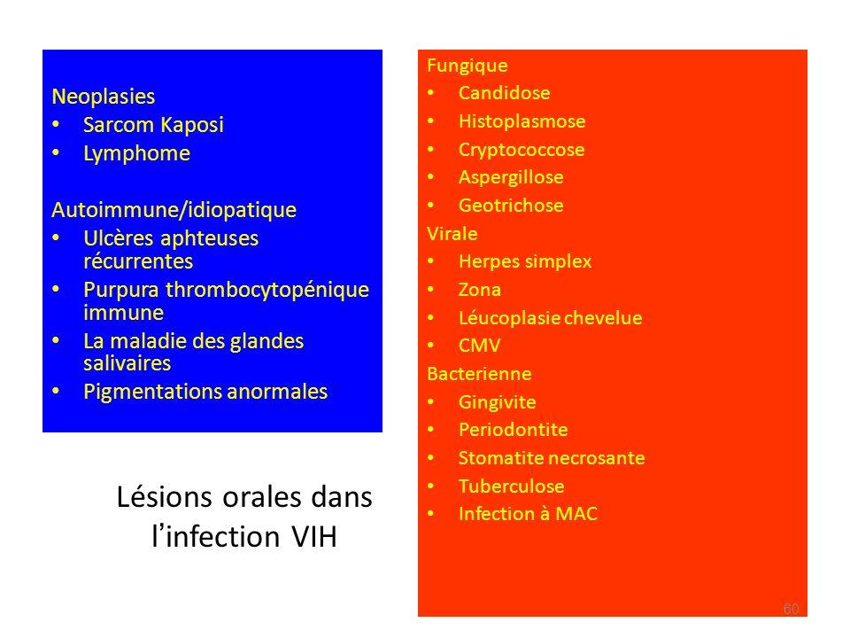 Lésions orales dans l infection VIH Neoplasies Sarcom Kaposi Lymphome Autoimmune/idiopatique Ulcères aphteuses récurrentes Purpura thrombocytopénique
