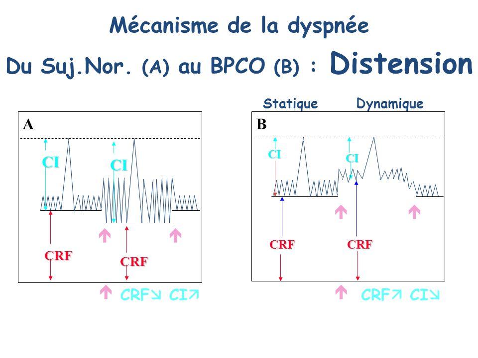 CI CI CRF CRF CRF CI Mécanisme de la dyspnée Du Suj.Nor. (A) au BPCO (B) : Distension A CI CI CRFCRF CRF CI StatiqueDynamique B