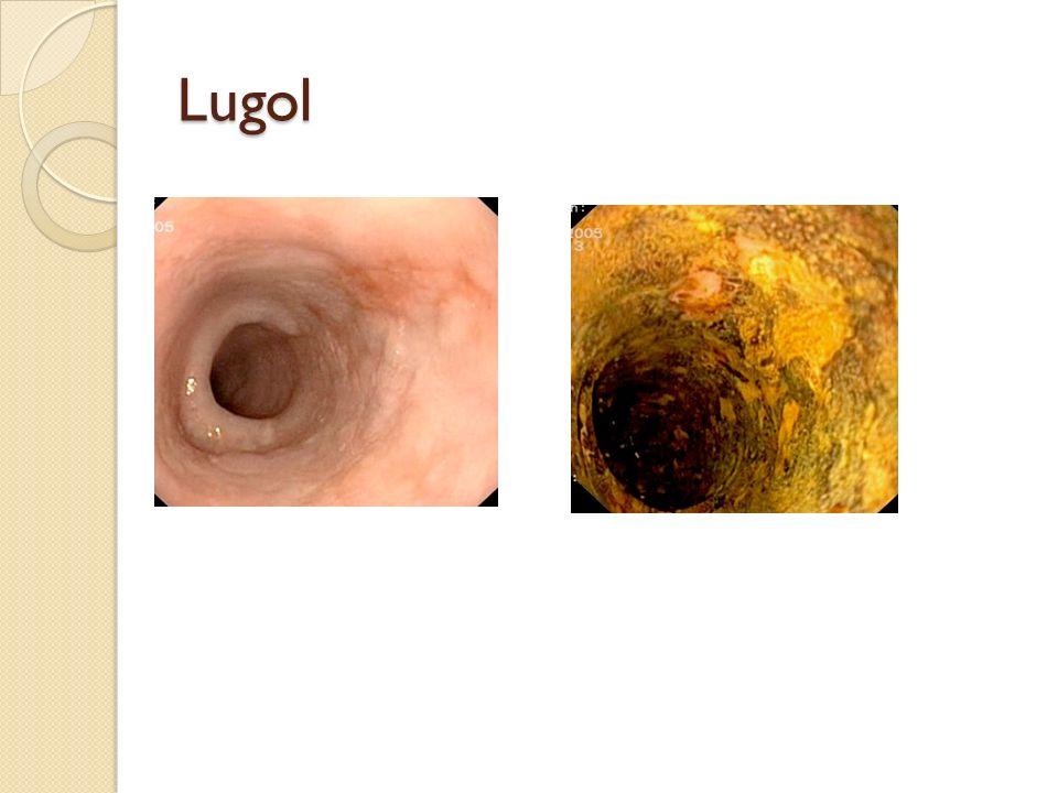 Lugol