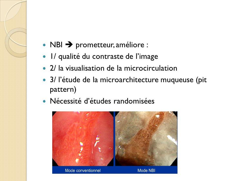NBI prometteur, améliore : 1/ qualité du contraste de limage 2/ la visualisation de la microcirculation 3/ létude de la microarchitecture muqueuse (pi