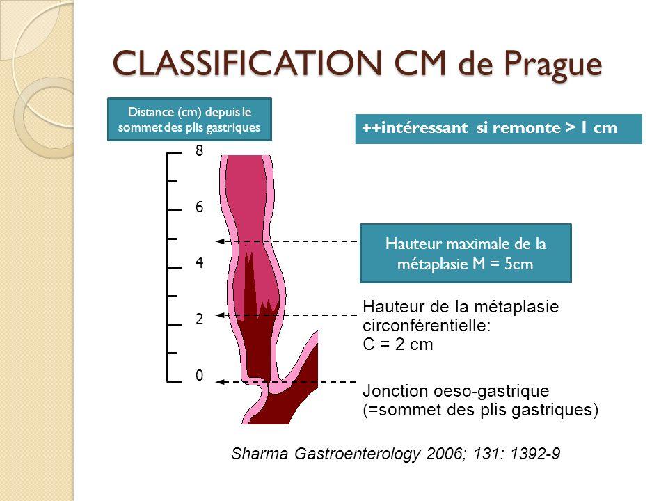 CLASSIFICATION CM de Prague 8642086420 Hauteur de la métaplasie circonférentielle: C = 2 cm Jonction oeso-gastrique (=sommet des plis gastriques) Shar