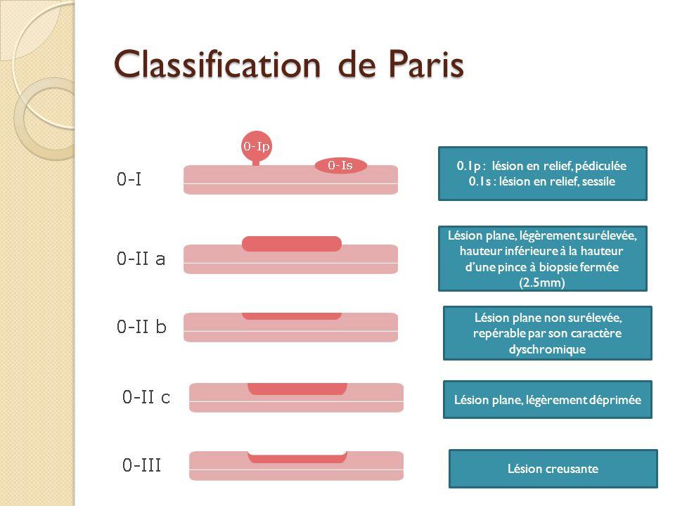 Classification de Paris 0.1p : lésion en relief, pédiculée 0.1s : lésion en relief, sessile Lésion plane, légèrement surélevée, hauteur inférieure à l