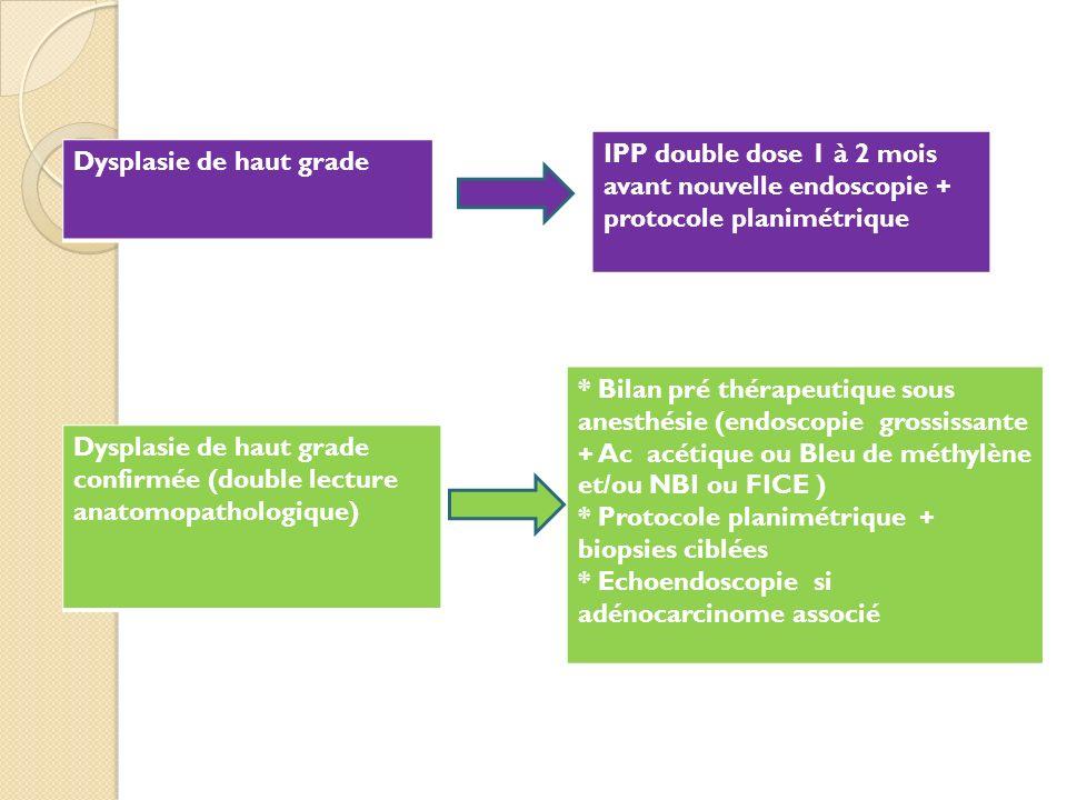Dysplasie de haut grade IPP double dose 1 à 2 mois avant nouvelle endoscopie + protocole planimétrique Dysplasie de haut grade confirmée (double lectu