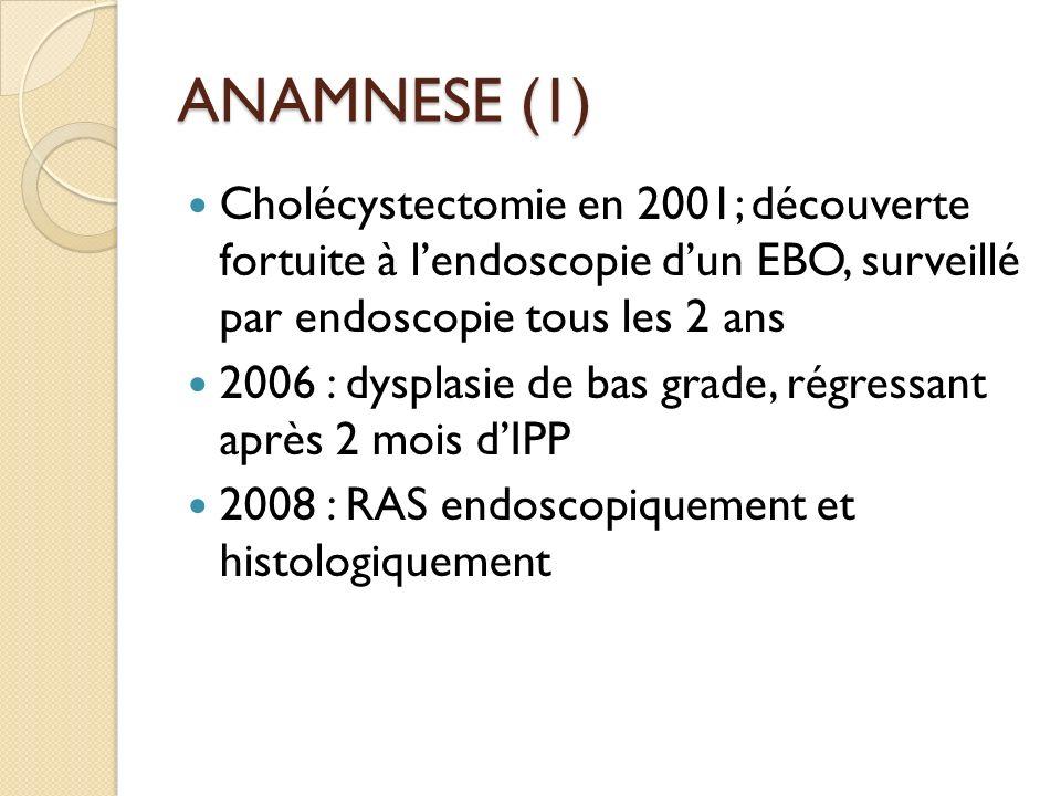 ANAMNESE (1) Cholécystectomie en 2001; découverte fortuite à lendoscopie dun EBO, surveillé par endoscopie tous les 2 ans 2006 : dysplasie de bas grad