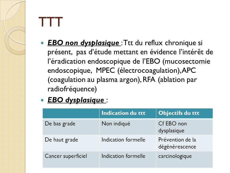 TTT EBO non dysplasique : Ttt du reflux chronique si présent, pas détude mettant en évidence lintérêt de léradication endoscopique de lEBO (mucosectom