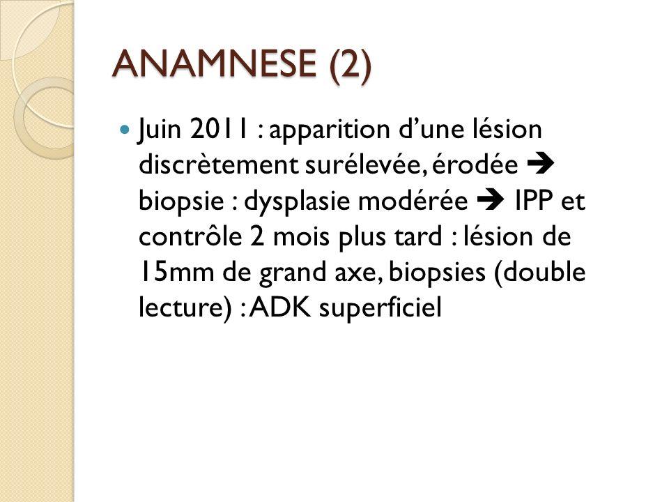 ANAMNESE (2) Juin 2011 : apparition dune lésion discrètement surélevée, érodée biopsie : dysplasie modérée IPP et contrôle 2 mois plus tard : lésion d
