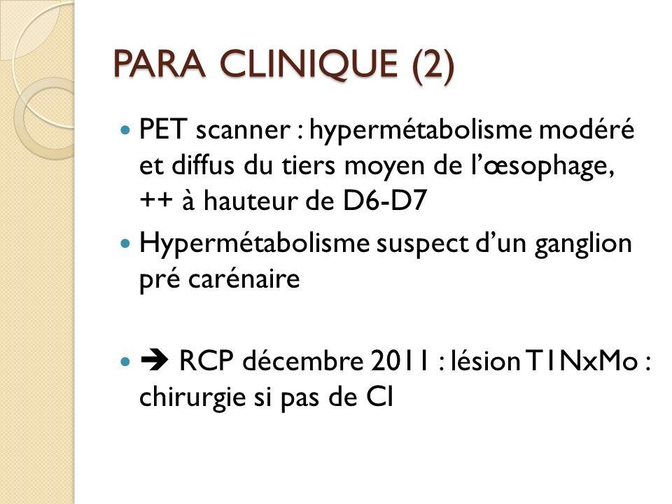 PARA CLINIQUE (2) PET scanner : hypermétabolisme modéré et diffus du tiers moyen de lœsophage, ++ à hauteur de D6-D7 Hypermétabolisme suspect dun gang